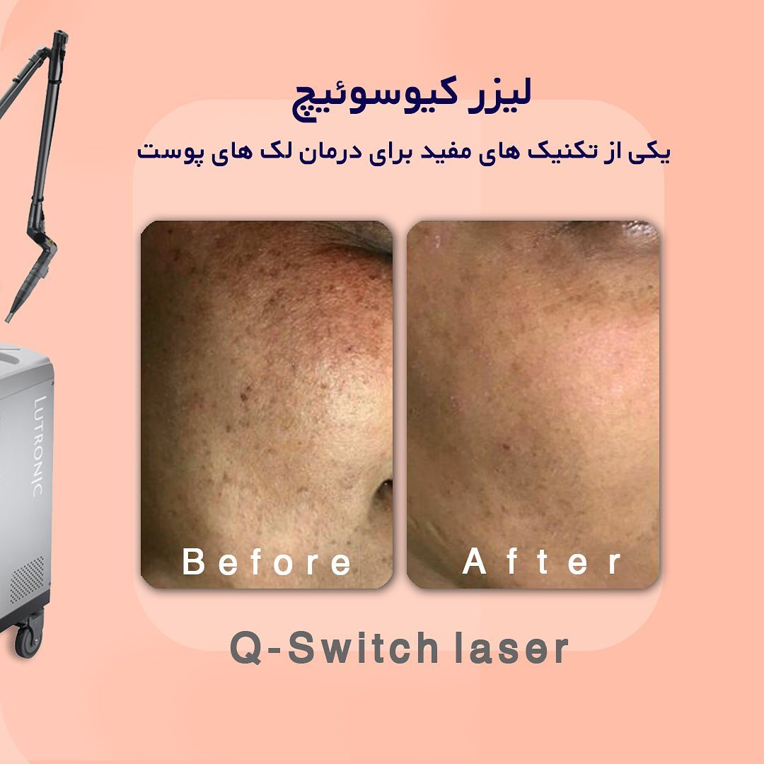 لیزر کیوسوئیچ درمان لک پوستی